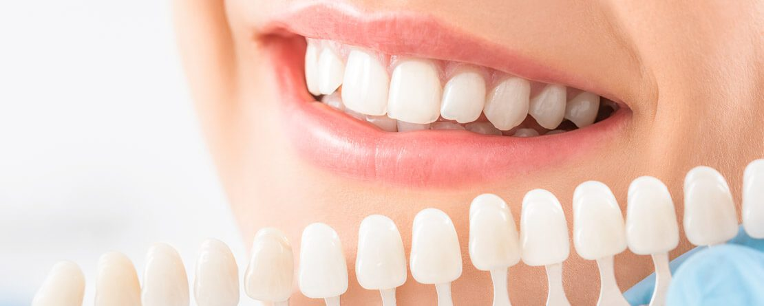 Optimizing Your Smile with Ceramic Veneers